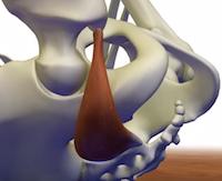L'étirement du muscle piriforme